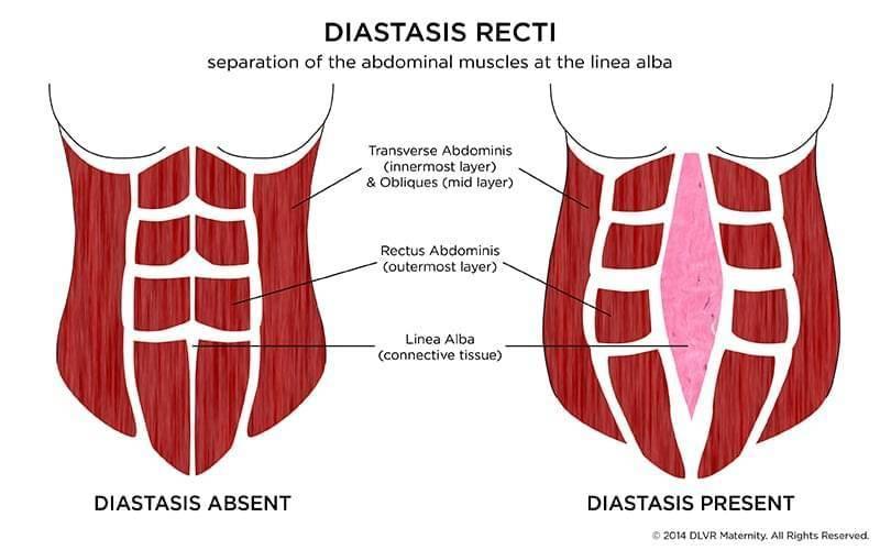 rectus diastase