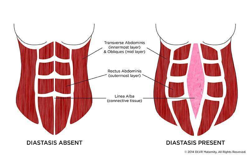 Rectus Diastase (delte mavemuskler) 1